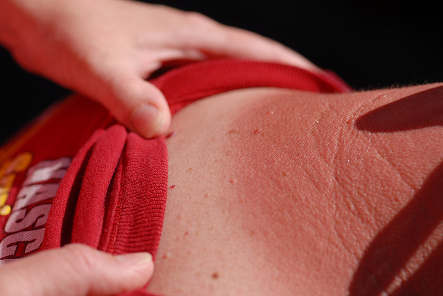 Skin cancer amongst pensioners is on the rise